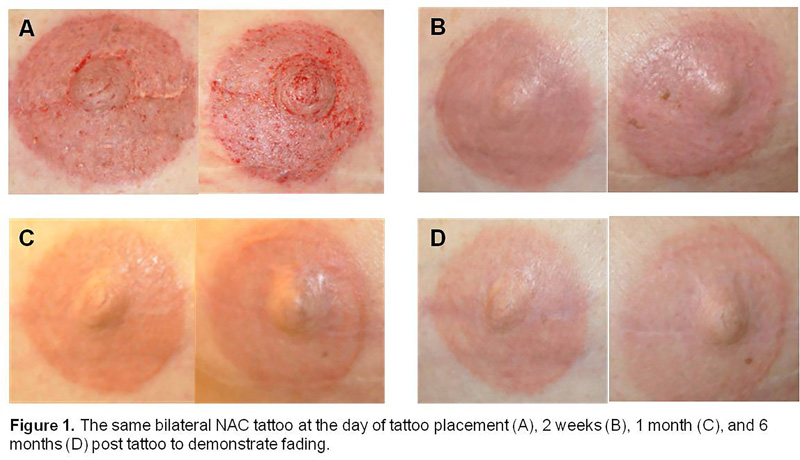 Nesps quantitative analysis of nipple areola complex for Areola tattoo after mastectomy